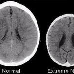 nature versus nurture in developing brains